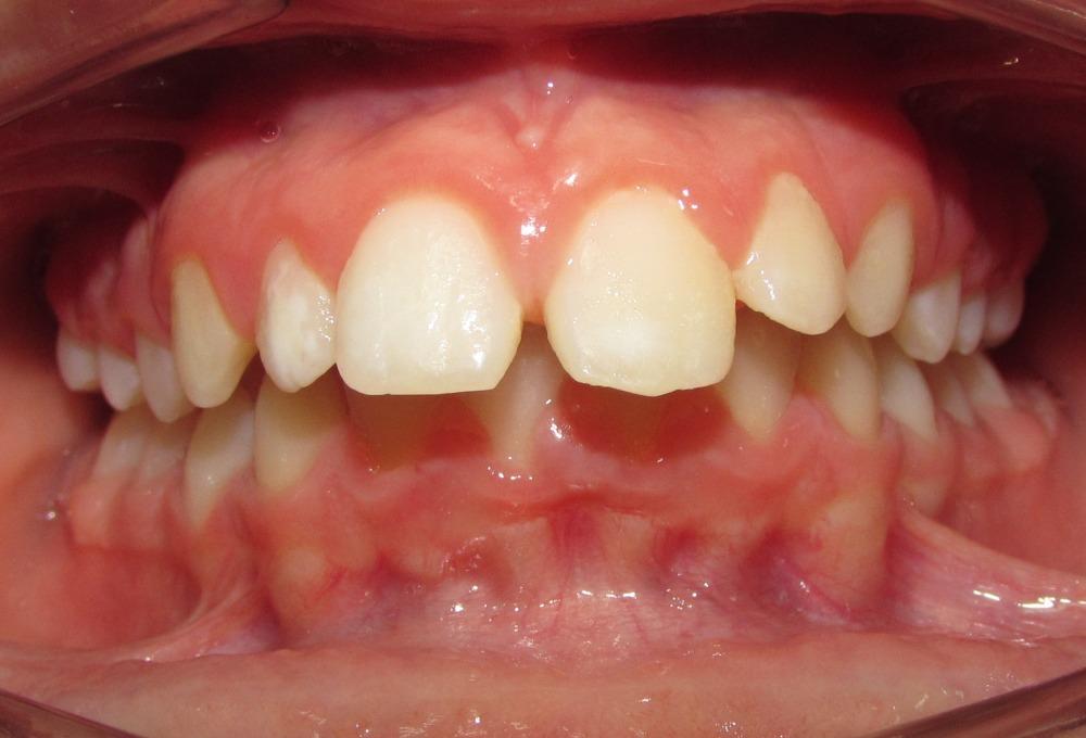 Qual'è il dente curato?