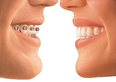 Foto 2 - Ortodonzia tradizionale e invisibile